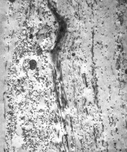 Bindegewebe, elektronenmikroskopische Aaufnahme